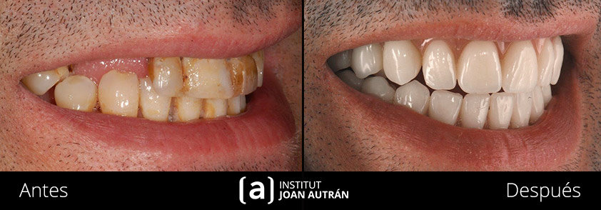 Implantes dentales de Institut Joan Autrán